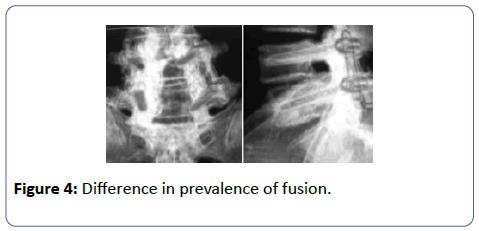 orthopedics-Difference-fusion