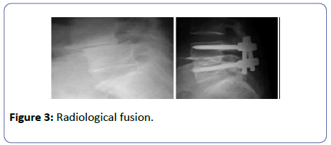 orthopedics-Radiological-fusion
